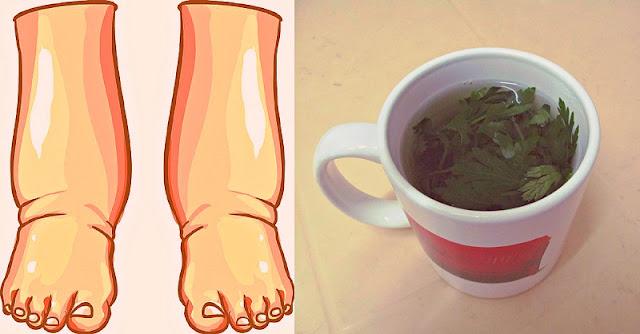 remedii naturale picioare umflate