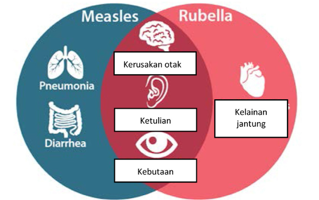 Gambar Manfaat Vaksin MR diagram venn, measles rubella, pneumonia, diare, diarrhea, kerusakan otak, ketulian, gangguan pendengaran, hearing impairment, kebutaan, kelainan jantung, heart disorder
