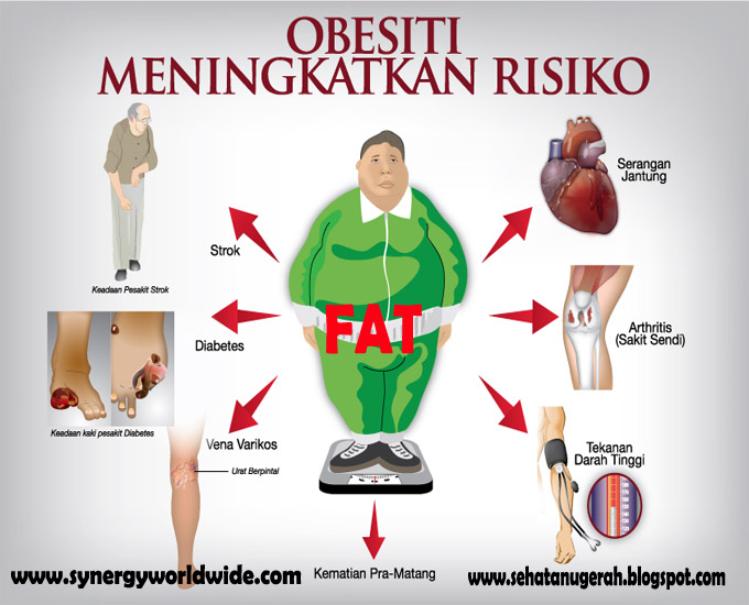 Sebelum Meninggal, Berat Badan Pasien Obesitas Sunarti Turun 15 Kg