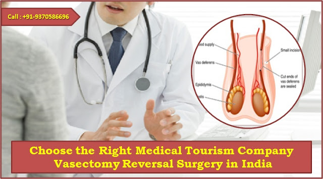 Choose the Right Medical Tourism Company - Vasectomy Reversal Surgery in India