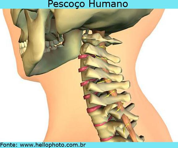 Остеохондроз шеи 1 степени что это такое