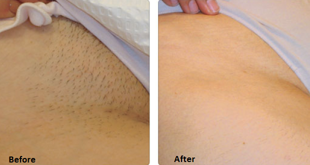 Advanced Derma Laser New York Guidelines For Laser Hair Removal