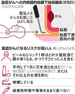 食道がん 早期発見 内視鏡的粘膜下層剝離術 ESD