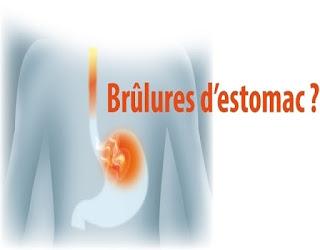 Remèdes naturels pour calmer les brûlures d'estomac