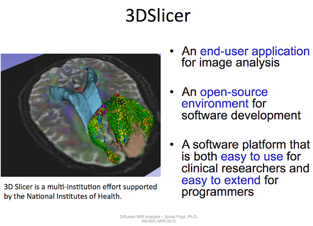 Visualization tool: 3D Slicer | Diffusion Imaging