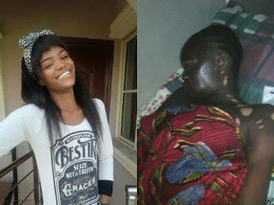 Fire incident victim, Chinenye Benjamin all smiles in new photos
