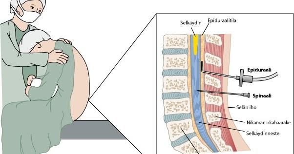 Spinaalitila