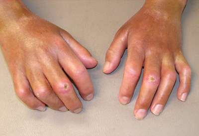 Systemic Sclerosis