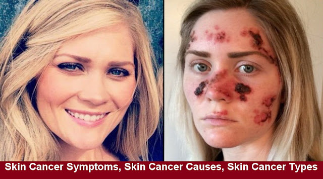 Skin Cancer Symptoms, Skin Cancer Causes, Skin Cancer Types & Prevention