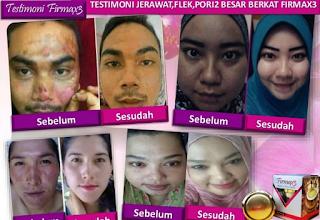 Firmax3 untuk Kecantikan