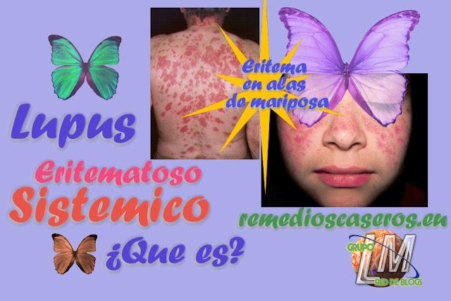 Lupus Sistemico que es