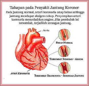 Tahapan Penyakit Jantung Koroner