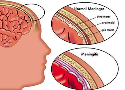 Memahami Penyakit Meningitis Lebih Jauh Lagi