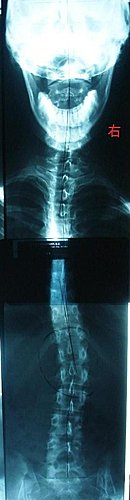 脊椎側彎, 脊椎側彎矯正治療, 脊椎側彎檢查, 骨盆歪斜, 脊椎側彎矯正運動