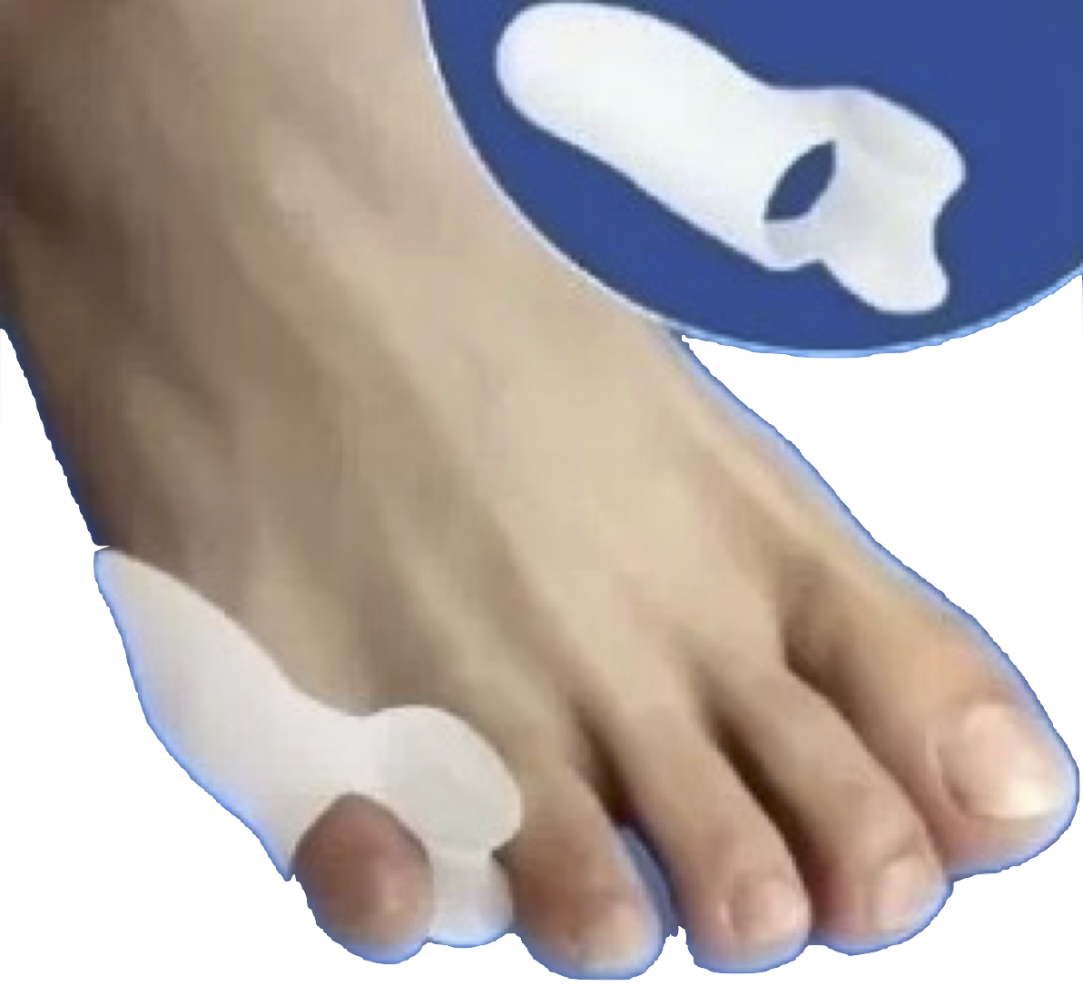 simple savings small toe bunion relief pack review