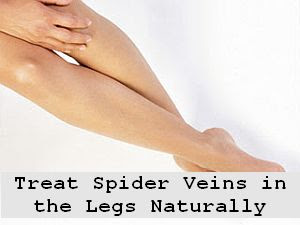 https://foreverhealthy.blogspot.com/2012/04/treat-spider-veins-in-legs-naturally.html#more