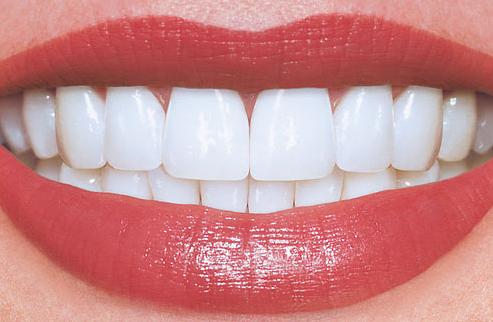 Tips untuk Mencegah Gigi Keropos