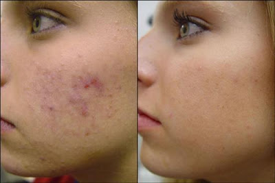 mierea si zeama de lamaie sunt excelente pentru estomparea cicatricilor acneice
