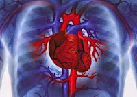 Ramuan Tradisional Obat Sakit Jantung