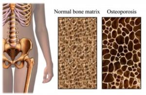 fitoestrogen untuk osteoporosis