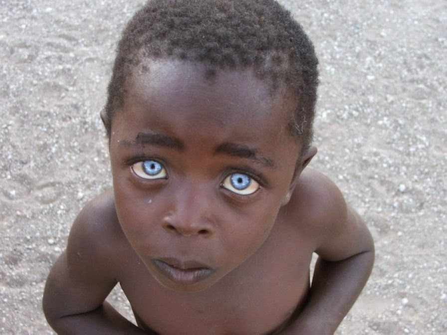 Strikingly Beautiful Eyes Of Real People