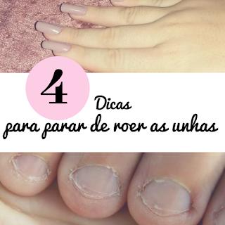 4 dicas para parar de roer as unhas