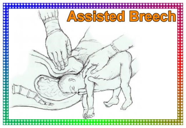 Assisted breech