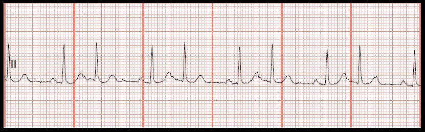 atrial bigeminy b 2nd degree av block type iAtrial Bigeminy
