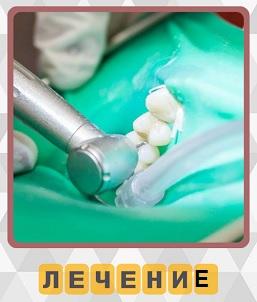 происходит лечение зубов на 5 уровне в игре 600 слов