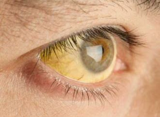 Tips Memutihkan Mata Kuning Secara Alami