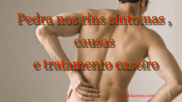 pedra-nos-rins-calculo-renal-sintomas-causas