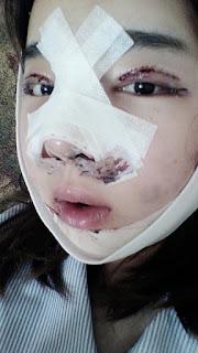 bengkak setelah operasi plastik hidung