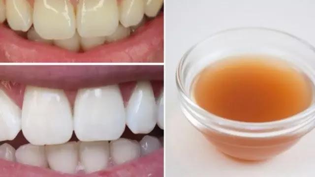 5 Cara Memutihkan Gigi Secara Alami Di Rumah Aman Dan Efektif