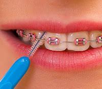 Cara membersihkan kawat gigi