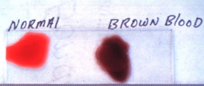 Most prevalent reasons for the interest you about brown discharge