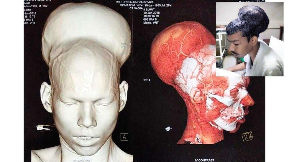 Incredibile: riescono ad asportare il più grande tumore al cervello nel mondo | Salute News