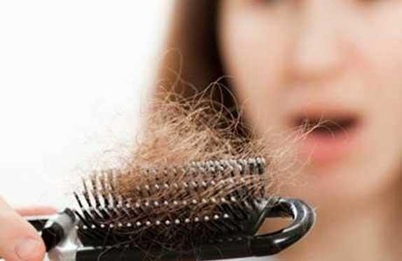 penyebab rambut rontok pada wanita dan cara megatasinya