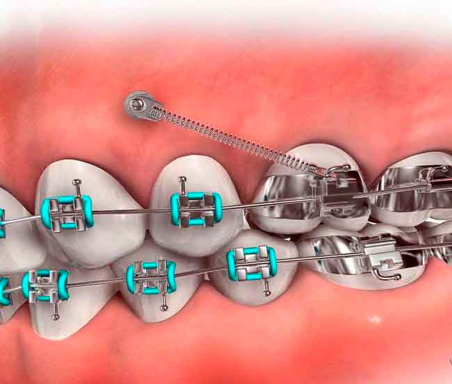 Miniscrews Orthodontics