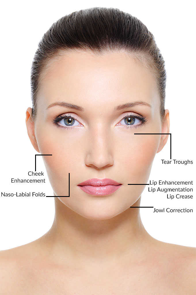 Selston Cosmetic Clinic: Facial Fillers with High & Low G ...