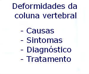 Deformidades da coluna vertebral causas sintomas diagnóstico tratamento prevenção