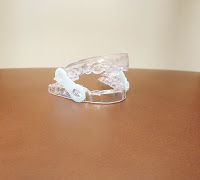 Custom Sleep Apnea Mouth Guard