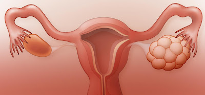Polycystic Ovary Syndrome-cureplus
