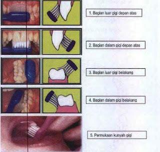 Cara/Langkah Menyikat Gigi