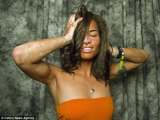 Fotógrafa con vitiligo Jasmine Colgan