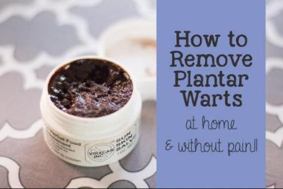 How To Remove A Plantar Wart - Methods Of Wart Removal