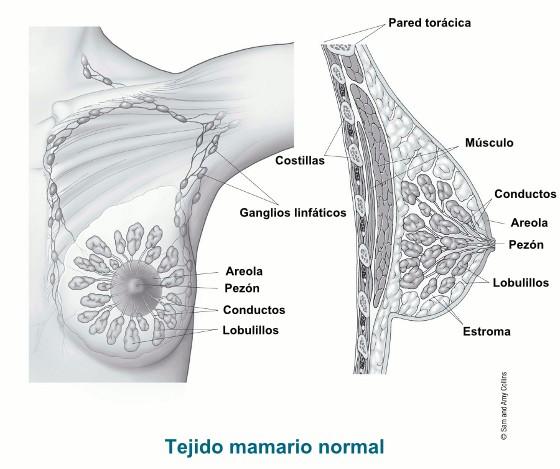 ¿Qué es el cáncer de seno?