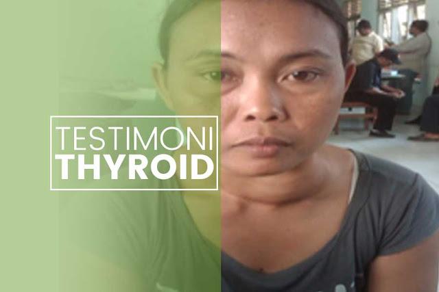 Sembuh dari Penyakit Thyroid dengan Obat Alami