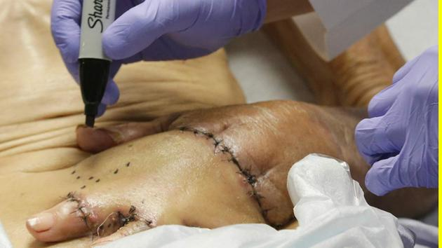 Womans Arm Sewn Inside Her Abdomen - Find Out Why