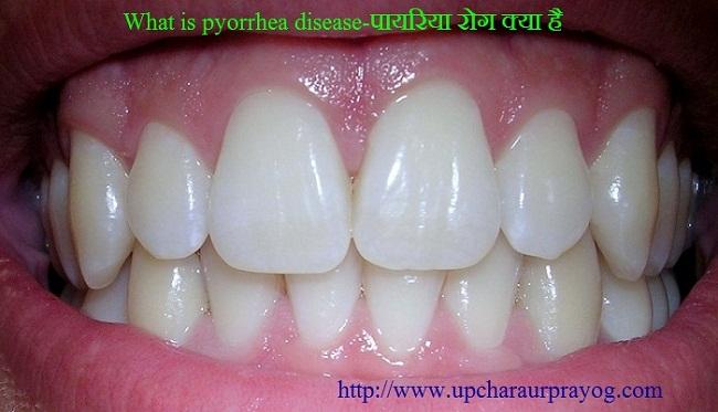पायरिया(Pyorrhoea)