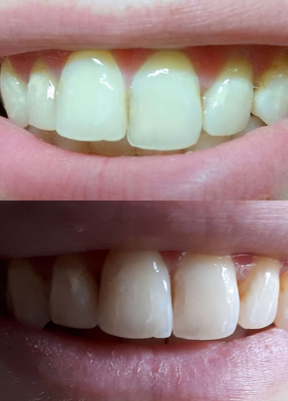 Sich schneidezähne verschieben Zahnverschiebung nach